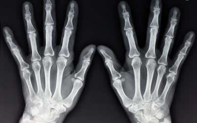 5 Reasons why X-Rays are art